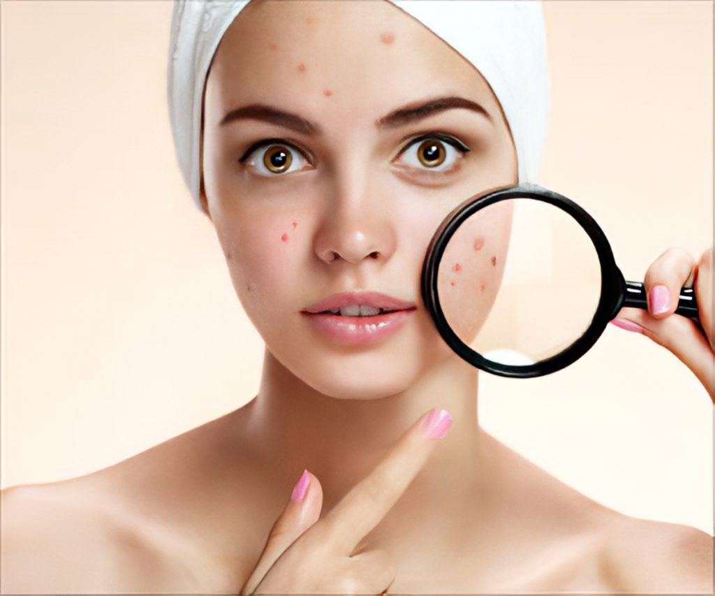 How To Get Rid Of Blackheads Naturally Fast